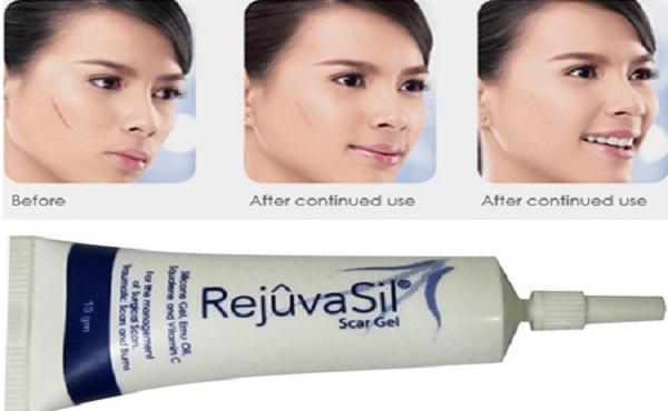 Kem trị sẹo Rejuvasil