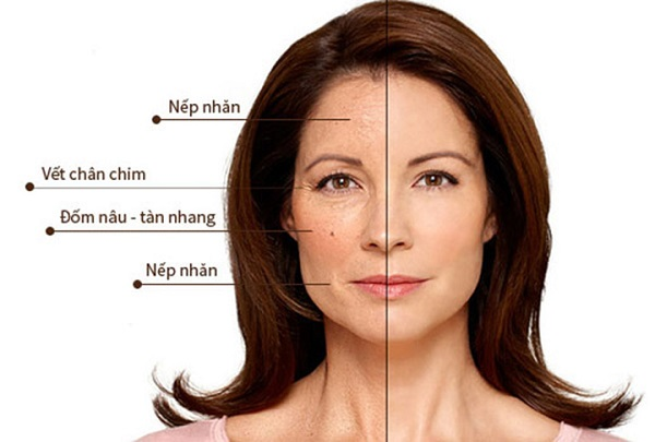 Các dấu hiệu của làn da bị lão hóa