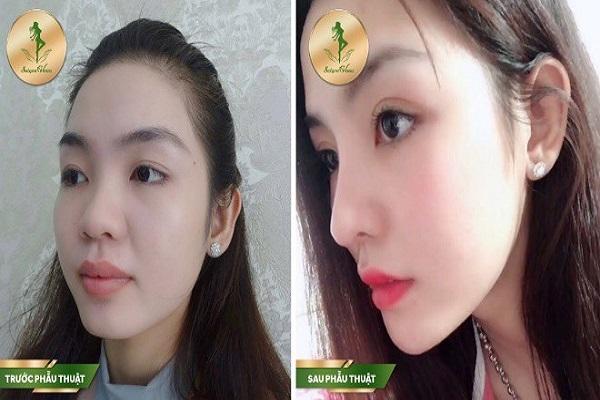 Nâng mũi tại Thẩm mỹ viện Sài Gòn Venus