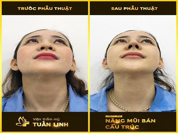 Nâng mũi tại Viện thẩm mỹ Tuấn Linh