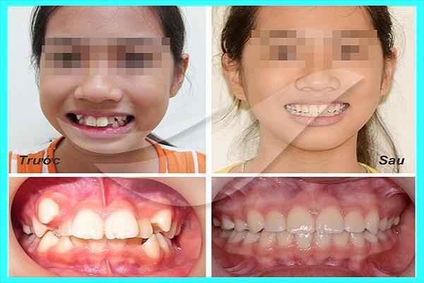 Phòng khám nha khoa niềng răng uy tín tại TPHCM